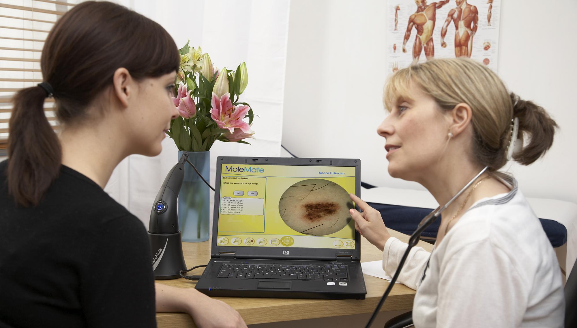 Mole Scanning Clinic Ashtead